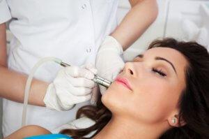Laserbehandlung Akne Narben